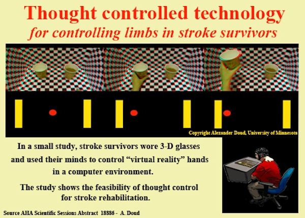 Infographic for stroke study